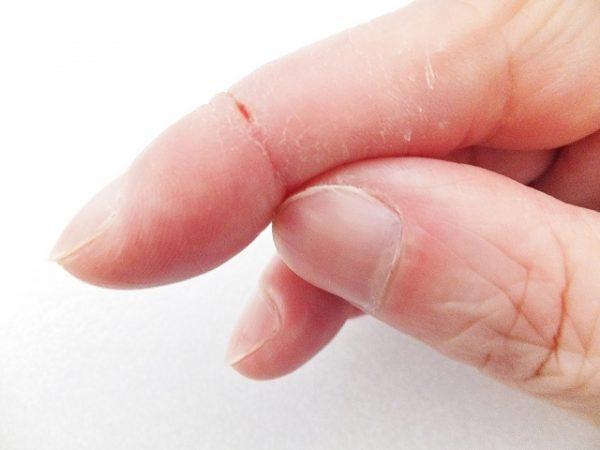 乾燥肌の原因 男性の場合の対策や食べ物をご紹介